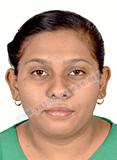 Suhashi-Dhande-Jabalpur-MP-OSH